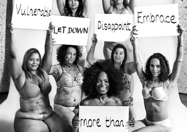 Ilford woman with vitiligo takes part in 'empowering' photoshoot to show 'we can all be beautiful'